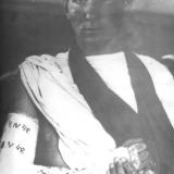 Раненный после наложения гипса 1942 год
